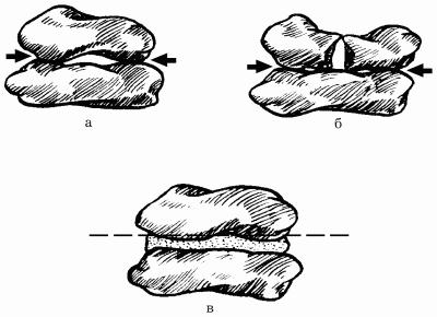 Способы укладки камней на раствор